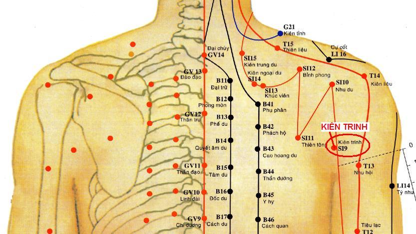 Triệu chứng cơ năng, thực thể, các huyệt cần châm để điều trị bệnh nhân đau thắt lưng cấp do lạnh